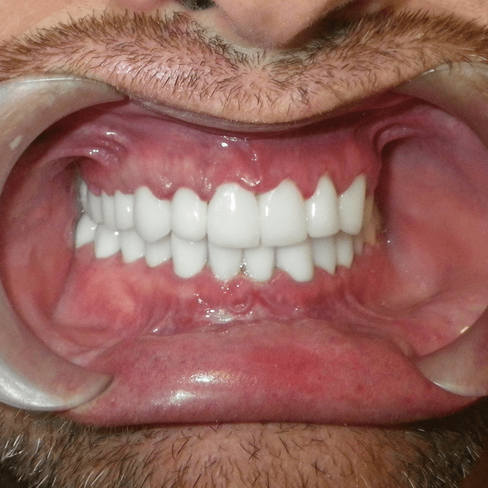 gingivectomia gingivoplastia coronas dentales cancun