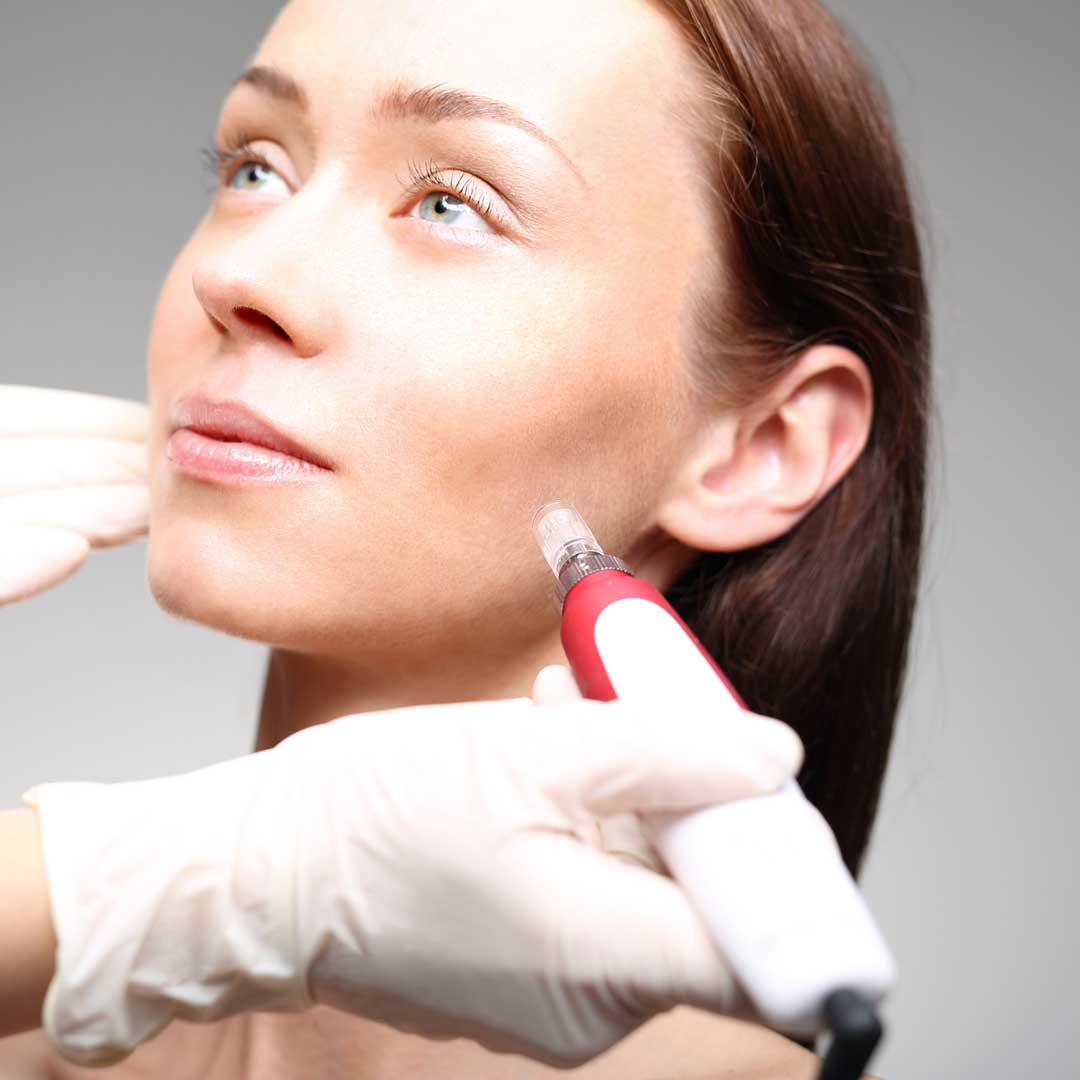 Fractora® Microneedling & Radio Frequency Skin Tightening