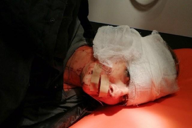 Пассажир такси ударил ножом в лицо девушку – водителя в Волгограде