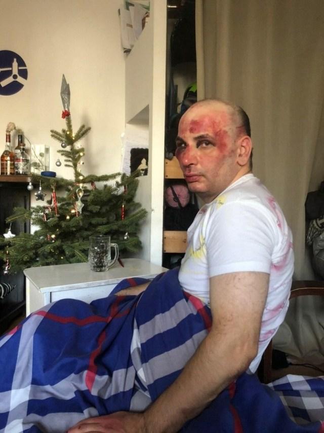 Учителя истории избили на улице хулиганы в Пятигорске