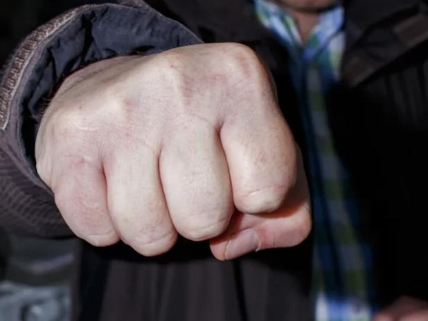 В Пятигорске водитель сломал челюсть мужчине из-за замечания