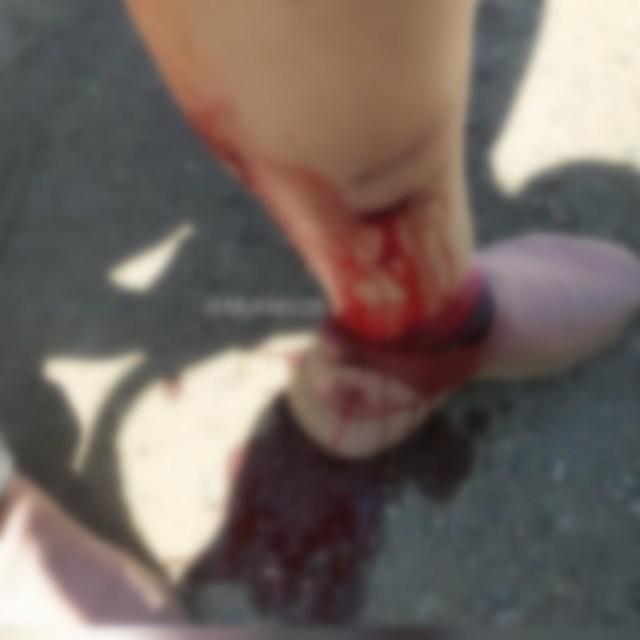 Жительница станицы Ессентукской пострадала от укуса собаки