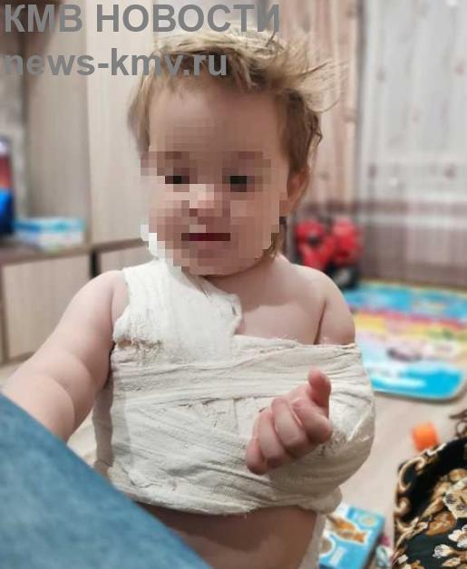 Российские врачи выписали ребёнку мазь при переломе