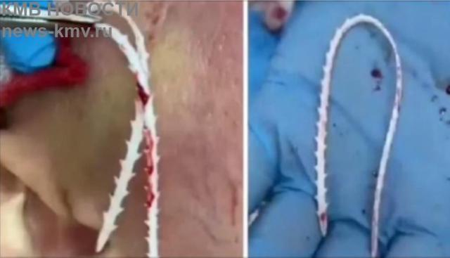 У пятигорчанки началось гнойное воспаление после похода к косметологу