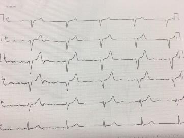 Vorderwandinfarkt Ekg Herzinfarkt Myokardinfarkt Herz