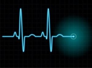 EKG Sinusrhythmus