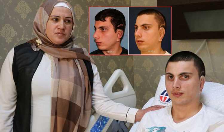 Турецкие врачи сделали парню ухо из ребра матери