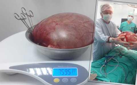 Врачи избавили жительницу Самсуна от 7-килограммовой кисты