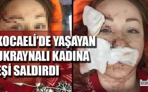 Украинка попала в заголовки турецких газет
