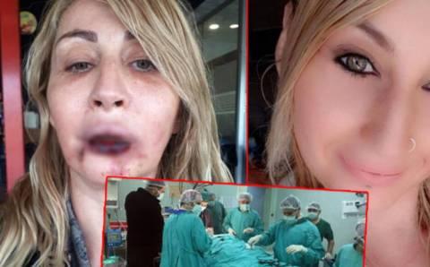 Результаты «неэстетической» операции в Анталье