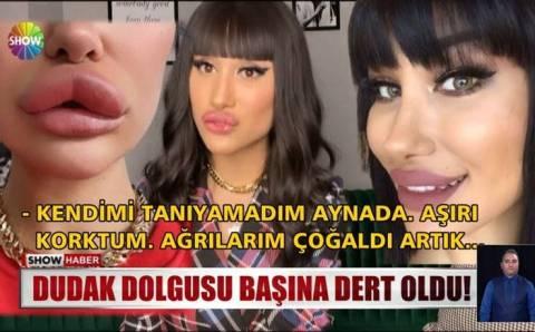 Очередная жертва косметологов из Измира