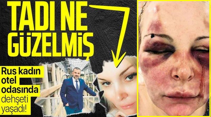 Два дня избивал россиянку в отеле