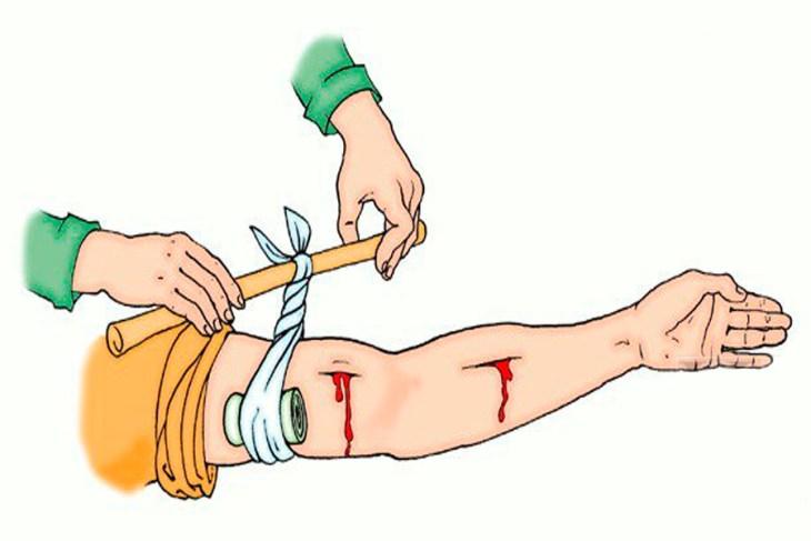 делать, различные ранения в картинках что долгое