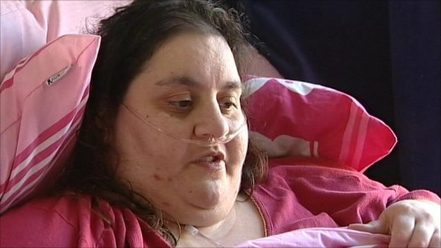 https://i0.wp.com/news.bbcimg.co.uk/media/images/48492000/jpg/_48492029_obese_still.jpg