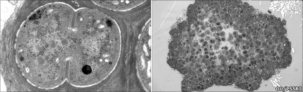 OU-20 - single (left) and colony (right) (OU PSSRI)