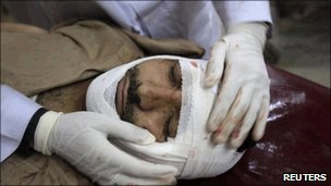 Injured suicide bomb victim in Pakistan