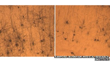 Neurons from a normal mouse (left) are longer and fuller than neurons from a mouse lacking SNX27 (right).