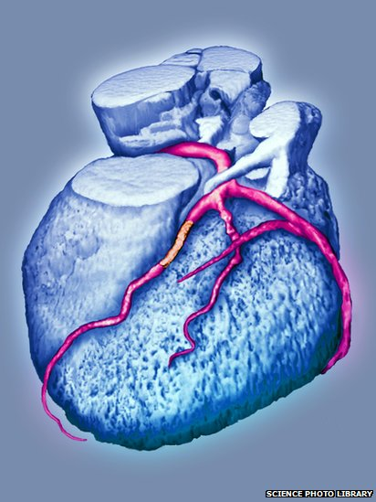 An image of a stent inserted into a coronary artery to keep it open