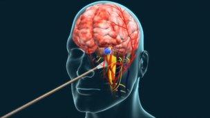 Illustration of endoscopic brain surgery