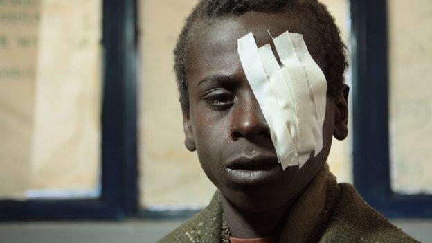 boy with bandage over one eye