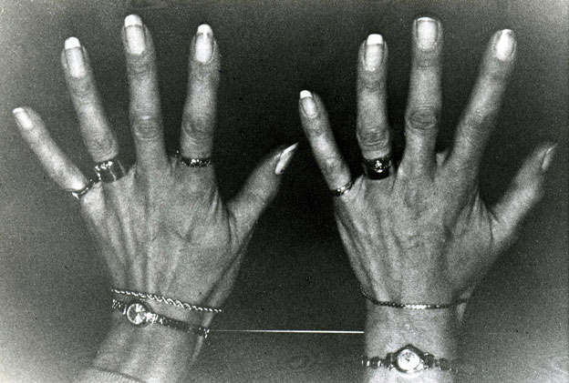 Reared-apart British twins' long, slender hands and fingers, showing their shared taste for jewellery.