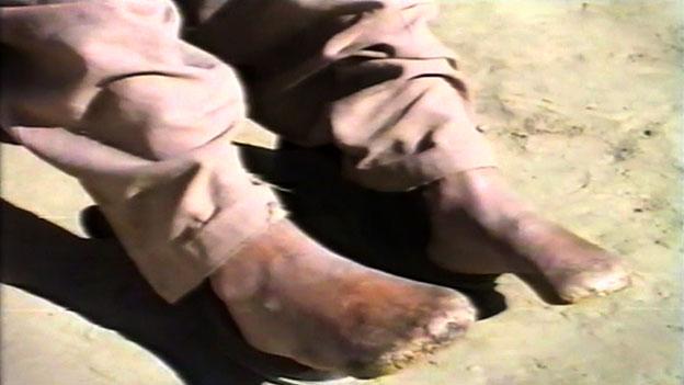 Amir Mehdi's mutilated feet