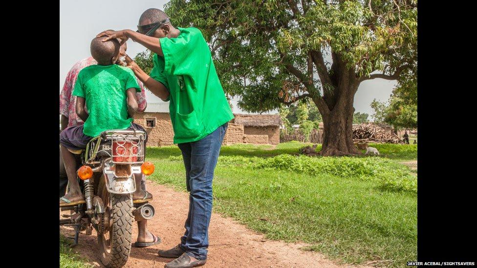 Eye surgeon Boubacar Fomba examining a boy's eyes on a motorbike, Mali