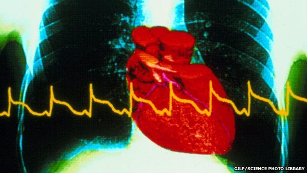 heart attack chest x-ray with ECG