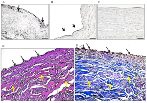 Microscopic view of a representative bioengineered vein graft with peripheral whole blood. Image Credit: ebiomedicine/sciencedirect