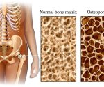 osteoporosis