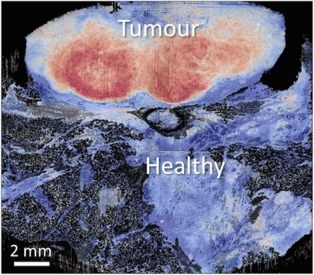 Breast cancer and normal tissue