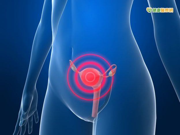 自然孔手術切除卵巢瘤 體表無傷口 | 早安健康NEWS