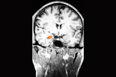 Study participants who completed an eight-week meditation training course had reduced activity in the right amygdala (highlighted structure) in response to emotional images, even when not meditating.