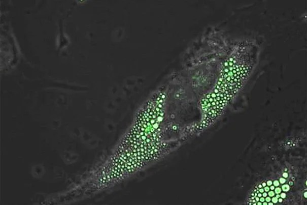 Human brown fat progenitor cells express the calorie-burning, UCP1 proteins (green) as the cell differentiates.