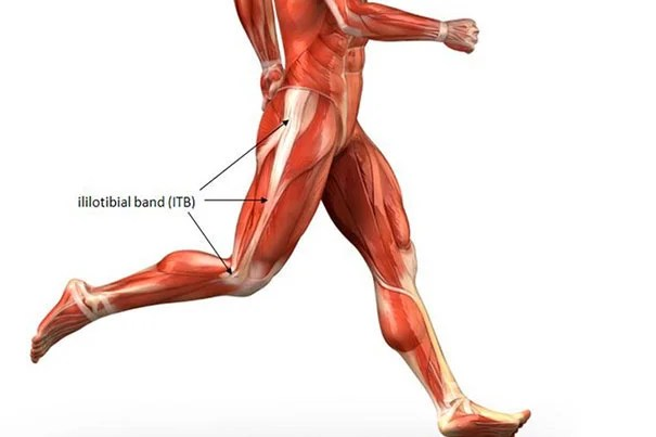 a description of iliotibial band friction syndrome This article outlines the practical management of iliotibial band friction syndrome  (itbfs) in running athletes itbfs is the most common cause.
