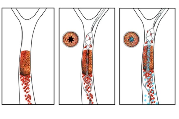 The novel drug-device combination developed by a team from Harvard's Wyss Institute and the New England Center for Stroke Research works quickly to re-vascularize a vessel obstructed by a blood clot. In this schematic, the re-vascularization process is depicted from left to right. An intra-arterial stent is used to open a small channel in the blood clot, restoring enough blood flow to trigger the clot-busting nanotherapeutic, which is activated by physical cues of fluid shear force.