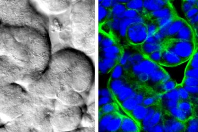 Human intestinal epithelial cells cultured in the Wyss Institute's human-gut-on-a-chip form differentiated intestinal villi when cultured in the presence of lifelike fluid flow and rhythmic, peristalsis-like motions. Here the villi are visible using a traditional microscope (left) and a confocal microscope (right). Fluorescent antibodies stain the nuclei blue and their specialized membranes, known as apical brush borders, green.