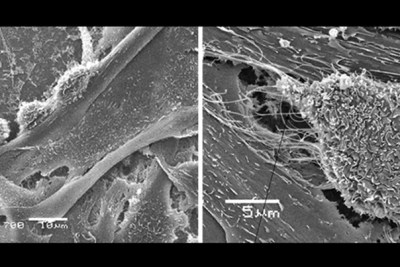 Cancer cells invading a blood vessel as seen on the left. In the image on the right, metastatic cancer cell form nanoscale bridges with endothelial cells lining blood vessels and inject miRNA through these nanobridges to control the endothelial cells.