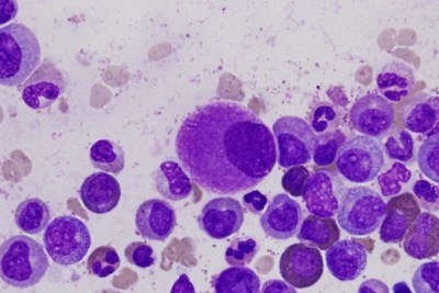 Researchers discovered that chronic myelogenous leukemia stem cells die in response to inhibition of a protein called Ezh2. Drugs that target the protein are currently being tested in clinical trials for other cancers.