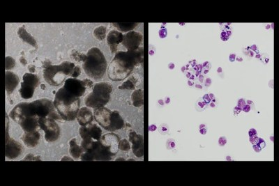 Red blood cells successfully made via induced pluripotent stem cells from a Diamond-Blackfan anemia (DBA) patient. Control iPS cells (left) and DBA iPSc cells (right), showing that DBA blood cells don't mature properly.