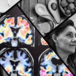 Harvard Alzheimers Research