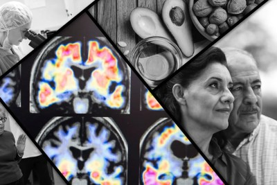 Harvard Alzheimers Research
