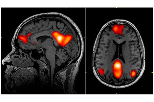 An MGH study has found that the use of fMRI and EEG may provide early detection of consciousness in patients with severe traumatic brain injury.