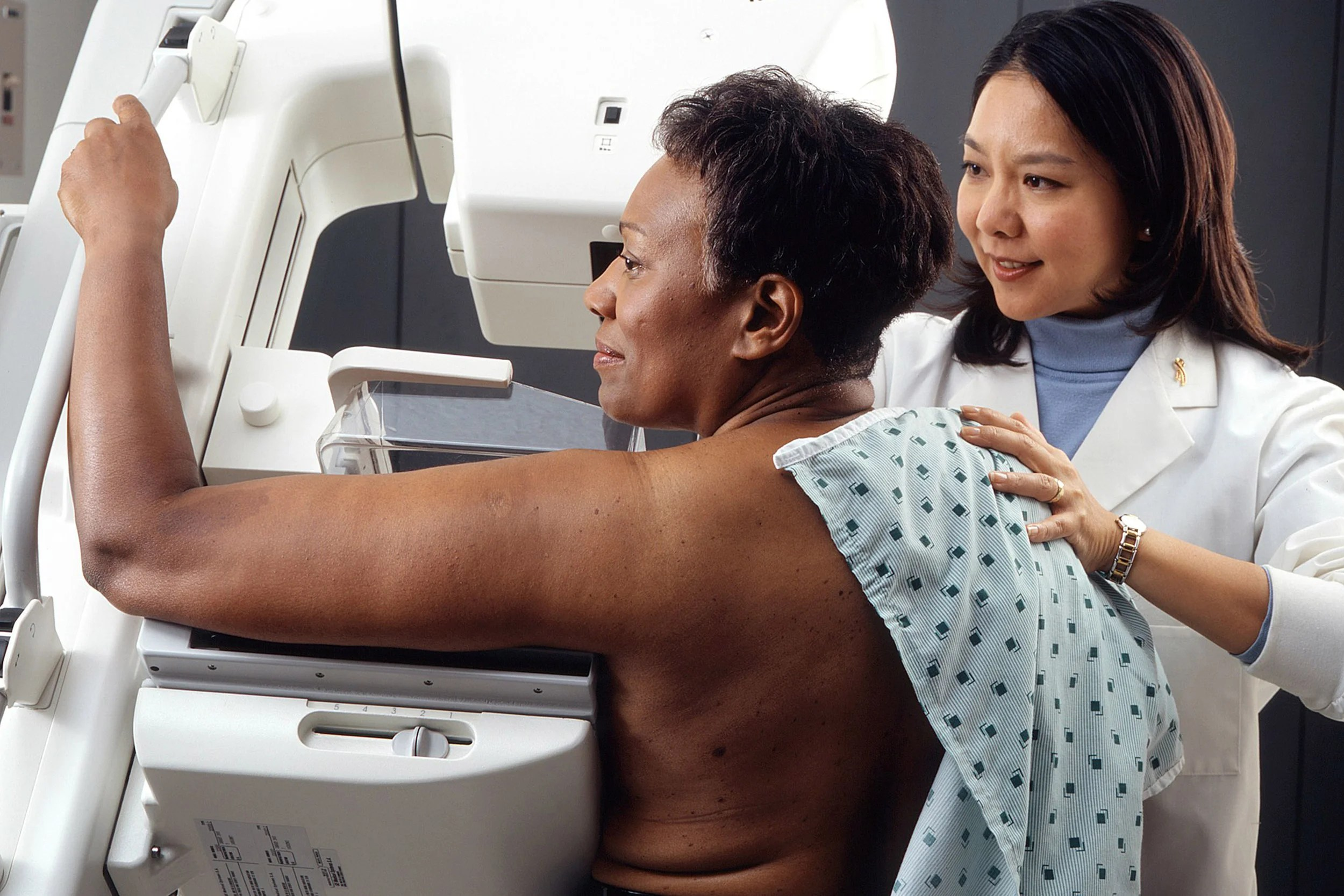 Age-based mammography screening guidelines may put nonwhite women at risk