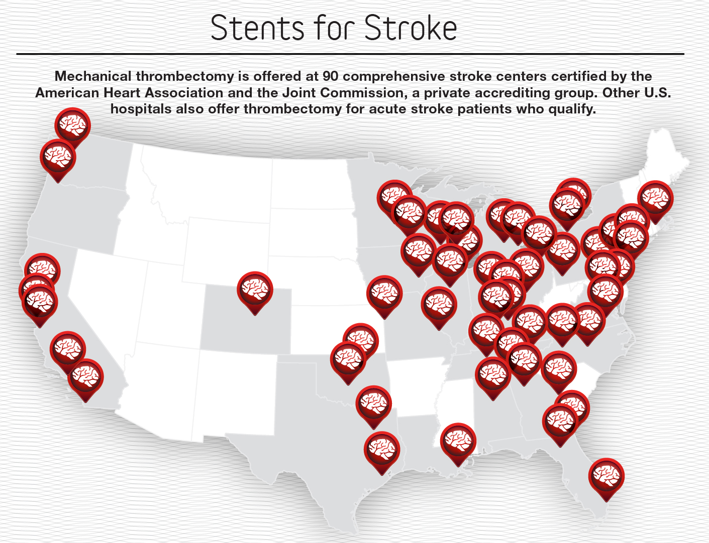 Stents For Stroke Infographic