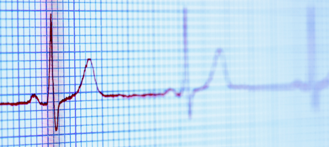 New guidelines aim to prevent sudden cardiac death  News