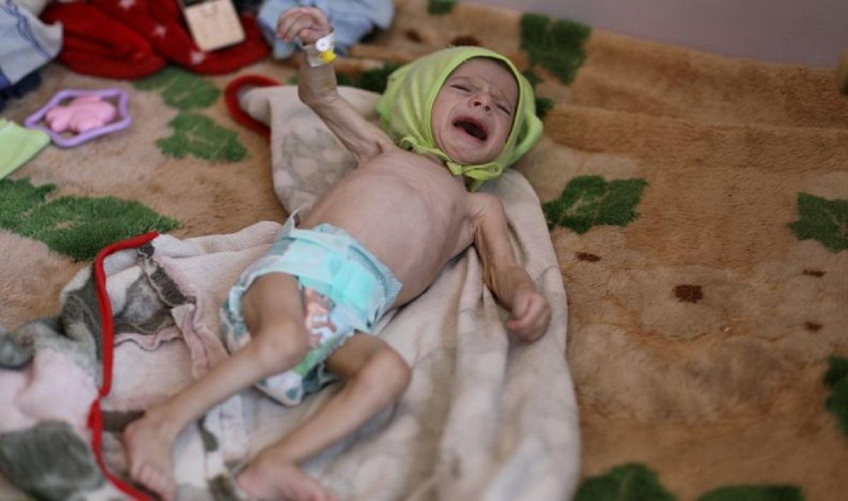 MUI Ajak Umat Islam Indonesia Bantu Warga Yaman yang Kelaparan akibat Perang