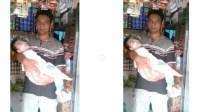 Mohon Do'anya, Bocah 2 Tahun yang Harus Minum Susu Lewat Hidung dan Bernapas Lewat Tenggorokan