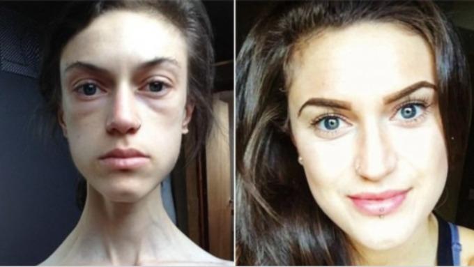 anorexia survivor says weight