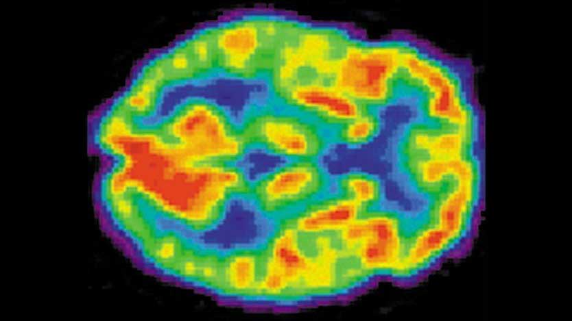 Some young NFL players have brain injuries  Voxitatis Blog